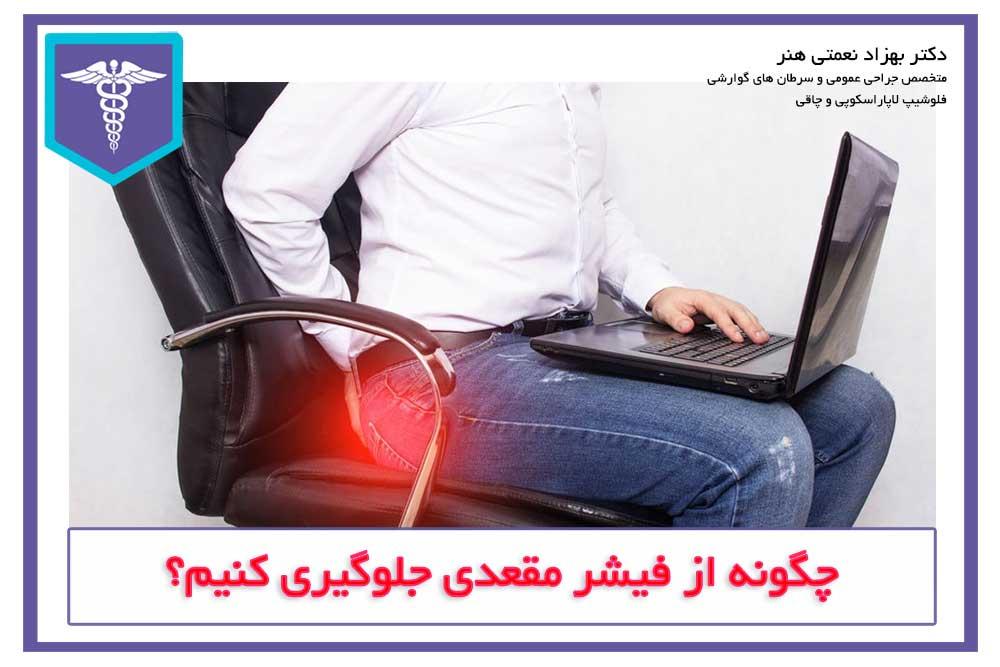 جلوگیری از شقاق مقعدی