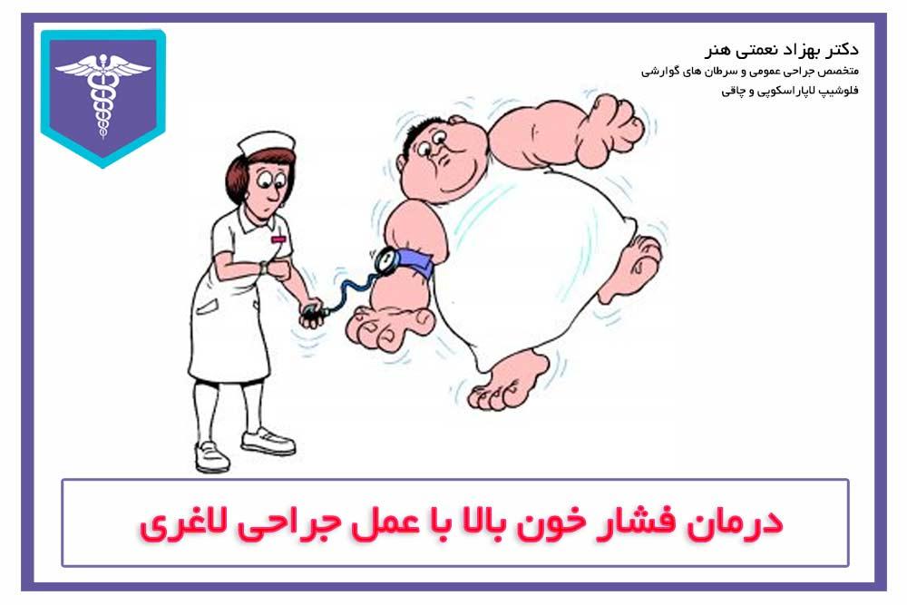 درمان فشار خون بالا با عمل لاغری