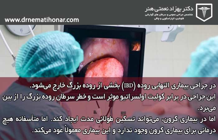 جراحی بیماری التهابی روده